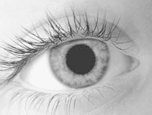 pupille-gross